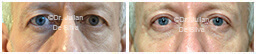 Male eyes, Before and After Eyelid Surgery Blepharoplasty, front view, patient 113