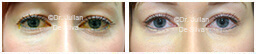 Woman's eyes, Before and After Eyelid Surgery Blepharoplasty, front view, patient 114