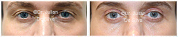 Male eyes, Before and After Eyelid Surgery Blepharoplasty, front view, patient 115