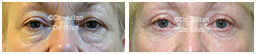 Woman's eyes, Before and After Eyelid Surgery Blepharoplasty, front view, patient 116