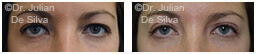Woman's eyes, Before and After Eyelid Surgery Blepharoplasty, front view, patient 38