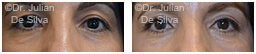 Woman's eyes, Before and After Eyelid Surgery Blepharoplasty, front view, patient 42