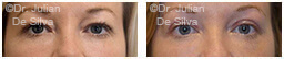 Woman's eyes, Before and After Eyelid Surgery Blepharoplasty, front view, patient 49