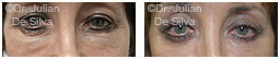 Woman's eyes, Before and After Eyelid Surgery Blepharoplasty, front view, patient 54