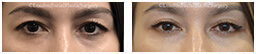 Woman's eyes, Before and After Eyelid Surgery Blepharoplasty, front view, patient 55