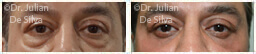 Male eyes, Before and After Eyelid Surgery Blepharoplasty, front view, patient 58