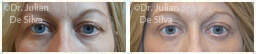 Woman's eyes, Before and After Eyelid Surgery Blepharoplasty, front view, patient 59