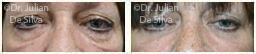 Woman's eyes, Before and After Eyelid Surgery Blepharoplasty, front view, patient 60