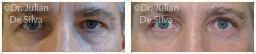 Male eyes, Before and After Eyelid Surgery Blepharoplasty, front view, patient 61
