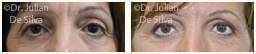 Woman's eyes, Before and After Eyelid Surgery Blepharoplasty, front view, patient 62