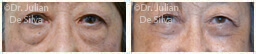 Woman's eyes, Before and After Eyelid Surgery Blepharoplasty, front view, patient 63