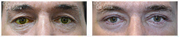 Male eyes, Before and After Eyelid Surgery Blepharoplasty, front view, patient 64