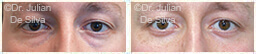 Male eyes, Before and After Eyelid Surgery Blepharoplasty, front view, patient 65