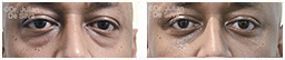 Male eyes, Before and After Eyelid Surgery Blepharoplasty, front view, patient 66