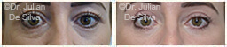 Woman's eyes, Before and After Eyelid Surgery Blepharoplasty, front view, patient 67