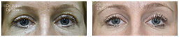 Woman's eyes, Before and After Eyelid Surgery Blepharoplasty, front view, patient 70y