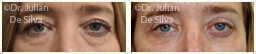 Woman's eyes, Before and After Eyelid Surgery Blepharoplasty, front view, patient 72