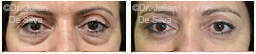 Woman's eyes, Before and After Eyelid Surgery Blepharoplasty, front view, patient 74