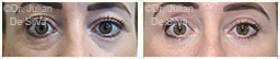 Woman's eyes, Before and After Eyelid Surgery Blepharoplasty, front view, patient 75
