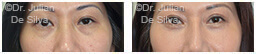 Woman's eyes, Before and After Eyelid Surgery Blepharoplasty, front view, patient 76