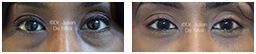 Woman's eyes, Before and After Eyelid Surgery Blepharoplasty, front view, patient 77