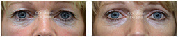 Woman's eyes, Before and After Eyelid Surgery Blepharoplasty, front view, patient 78