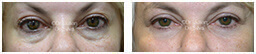 Woman's eyes, Before and After Eyelid Surgery Blepharoplasty, front view, patient 79