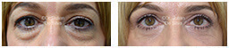 Woman's eyes, Before and After Eyelid Surgery Blepharoplasty, front view, patient 80