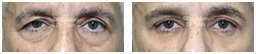 Male eyes, Before and After Eyelid Surgery Blepharoplasty, front view, patient 81