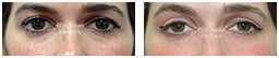 Woman's eyes, Before and After Eyelid Surgery Blepharoplasty, front view, patient 82