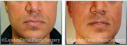 Male face After Chin Implants - front view, patient 5