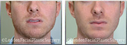 Male face After Chin Implants - front view, patient 6
