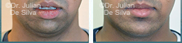 Male face After Chin Implants - chin, front view, patient 22