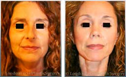 Female face, before and after Facial Volume Restoration Treatment - front view, patient 1