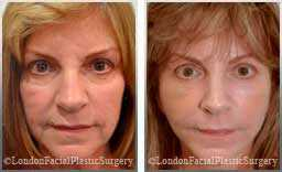 Female face, Before and After Facelift Treatment,jowls, saggy neck, multiple wrinkles and lines in her skin with volume loss, front view, patient 1