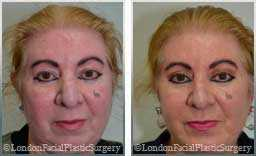 Female face, Before and After Facelift Treatment, jaw and neckline, front view, patient 7