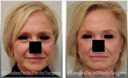 Female face, Before and After Facelift Treatment, face and neck lifting surgery, patient 10