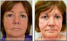 Female face, Before and After Facelift Treatment, face and neck lifting surgery, patient 8