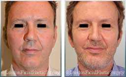 Male face, Before and After Facelift Treatment, face and neck lifting surgery, front view, patient 11