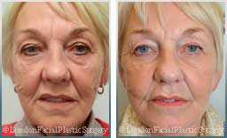 Female face, Before and After Facelift Treatment, face and neck lifting surgery, front view, patient 12