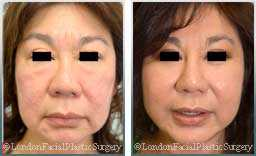 Female face, Before and After Facelift Treatment, face and neck lifting surgery, front view, patient 13
