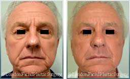 Male face, Before and After Facelift Treatment, face and neck lifting surgery, front view, patient 14