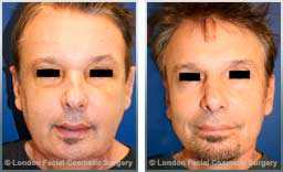 Male face, before and after blepharoplasty with face and neck lift - front view, patient 2