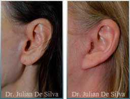 Female Neck, Before and After Facelift Treatment, face and neck lifting surgery, side view, patient 17