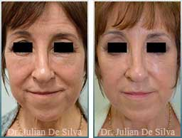 Female neck, Before and After Facelift Treatment, face and neck lifting surgery, front view, patient 18