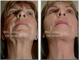 Female face, Before and After Facelift Treatment, face and neck lifting surgery, front view, patient 19