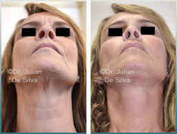 Female face, Before and After Facelift Treatment, face and neck lifting surgery, front view, patient 20