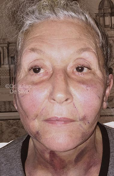 Photo: Facelift (Rhytidectomy) - After Treatment - Female face, frontal view, patient 1