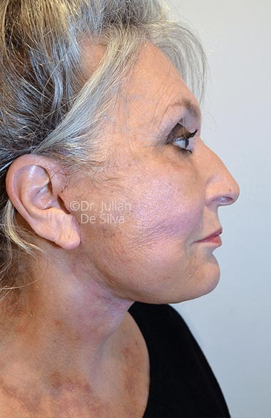 Photo: Facelift - AfterTreatment - Female face, right side view, patient 1. Photos show the scars at 1-week after surgery