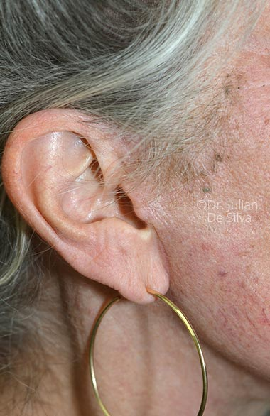 Photos 18-months after surgery: Facelift - Female face, right side view, patient 1 (ear)